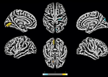 Exames de ressonância magnética feitos na Unicamp em 81 pacientes com sintomas neuropsiquiátricos pós-COVID revelam alterações na estrutura do córtex cerebral. As áreas em amarelo apresentam redução na espessura cortical. As marcas azuis correspondem a áreas com espessura aumentada. Foto: Divulgação/Fapesp