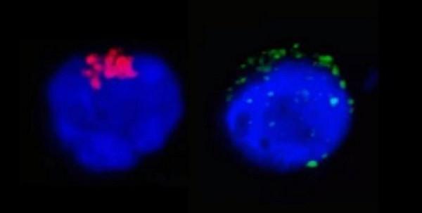 Na imagem da esquerda é possível observar a enzima RdRp do SARS-CoV-2 (em vermelho), que regula a replicação viral, no interior do linfócito T CD4.Na imagem da direita, as manchas verdes representam as proteínas de espícula do SARS-CoV-2 (spike proteins) próximas à membrana da célula de defesa humana. Foto: Divulgação/Unicamp
